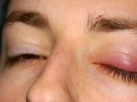 Cara Menghilangkan Mata Bintitan Habis Nangis Dengan Cepat
