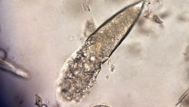 Conheça os parasitas que vivem na sua cara