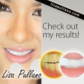 Teeth Whiten at Home