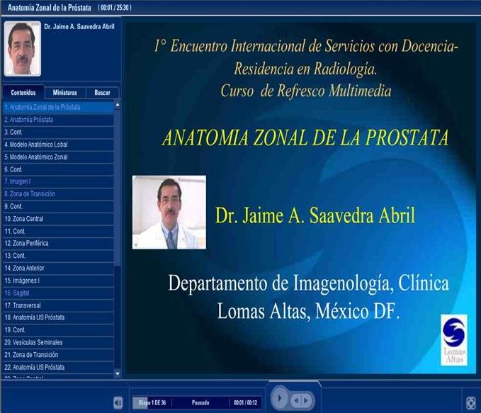 Todo Ecografía Médica: Anatomía Zonal de la Próstata