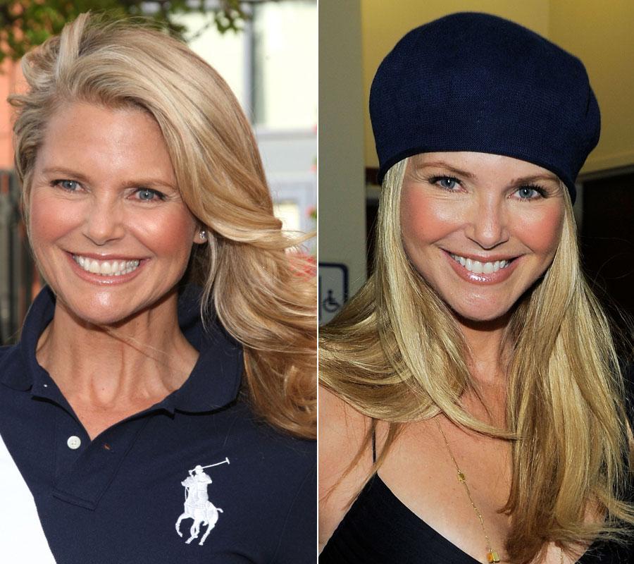 Cadillac facial plastic surgery