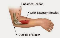Tennis elbow medical vocabulary