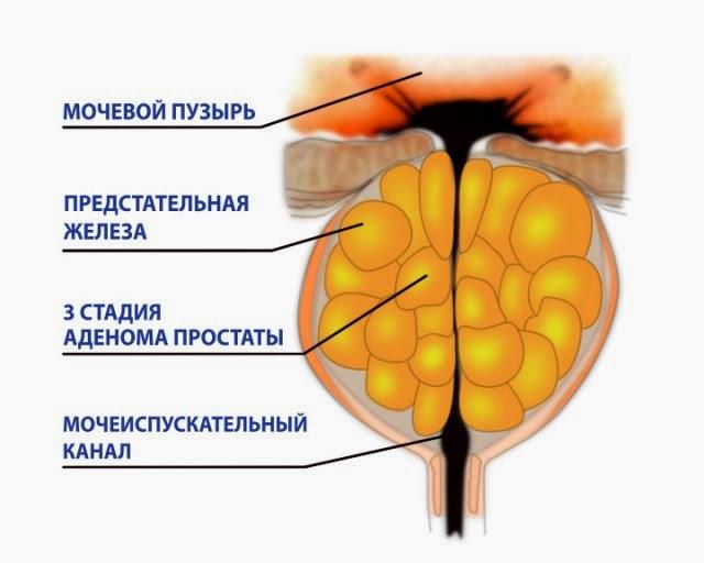 Лечения алмагом 01 простатита
