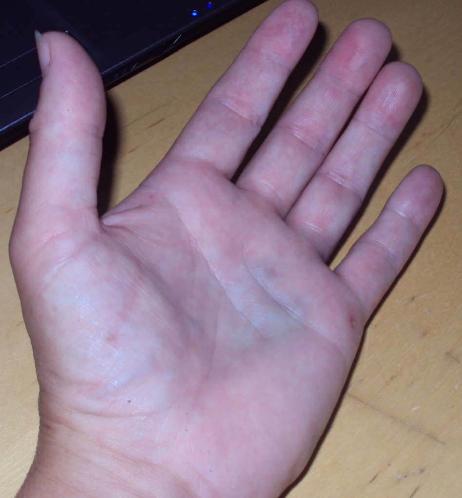 thumb hurting and bruise on palm
