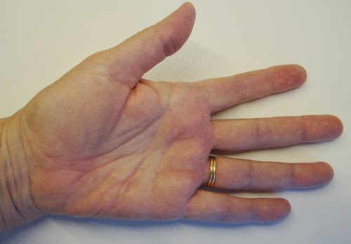 svamp i handflatan