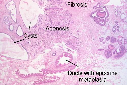 Fibrocystic Breast Disease - Healthline
