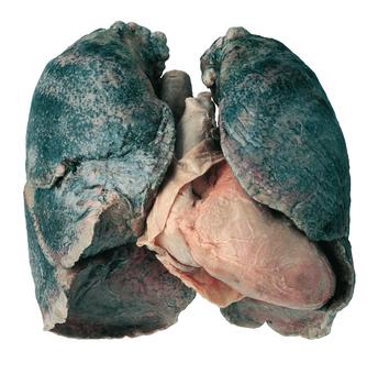 Polmoni di un fumatore plastinazione
