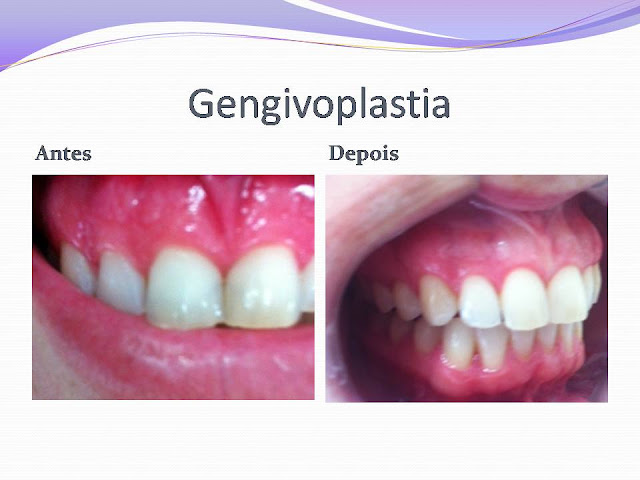 Gengivoplastia - Gengivoplastia - Caso Clínico II
