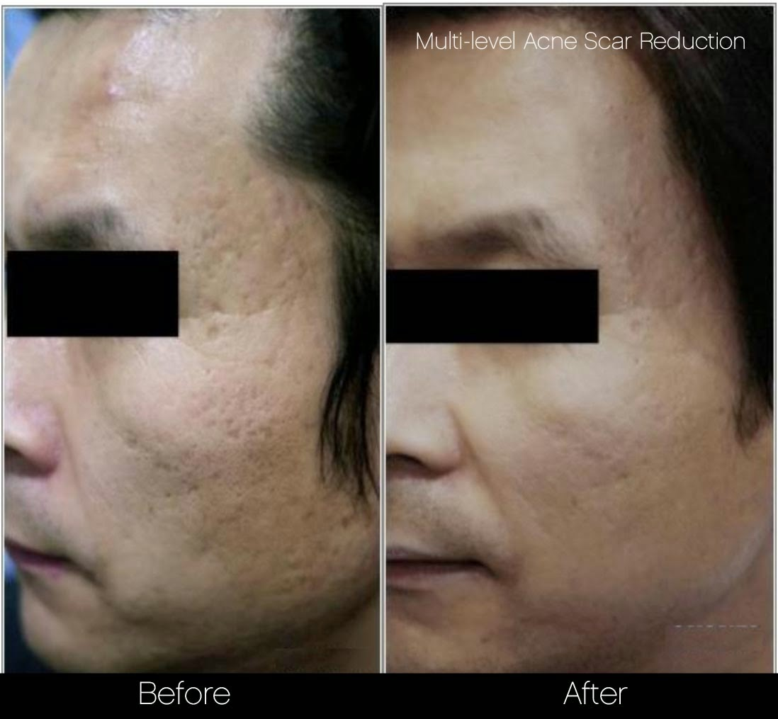 Multi-level acne scar reduction