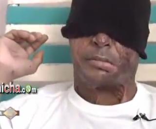 Mujer Arroja ácido en la cara del novio después de un supuesto abusó de su hija