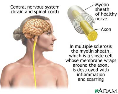 Adult multiple sclerosis