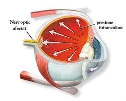 Adjuvant pretios in tratarea glaucomului — remedii naturiste