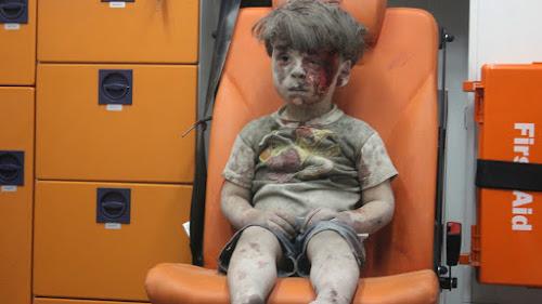 Imagens Perturbadoras que Mostram Como é a Realidade Em Uma Zona de Guerra