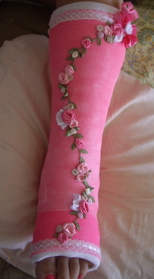 Sweeet designs by cheryl my decorated cast for Arm cast decoration ideas