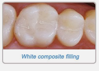 http://www.dentistinchennai.com/cosmetic-fillings.php