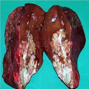 pengobatan tumor hati ampuh, obat kanker hati, pengobatan kanker hati