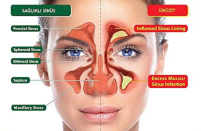sinüzit ameliyatı,sinüs tedavisi,sinüzitin tedavisi,sinüzit ameliyatları,sinüzit tedavi, sinüzit doğal tedavi,bitkilerle sinüzit tedavisi