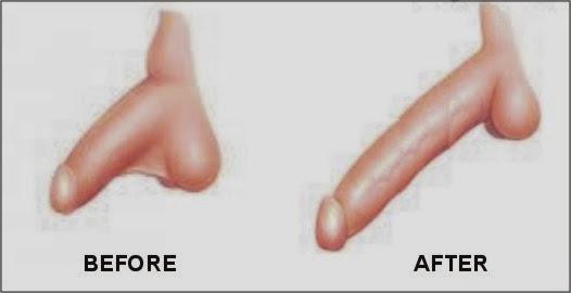 Folk prescription penis enlargement