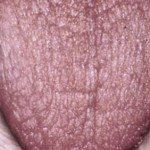 Dry Mouth Symptoms & Prevention