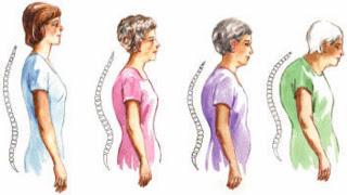 Perempuan Rentan Osteoporosis,Cegah Dengan 5 langkah berikut ini