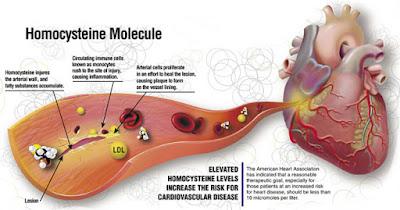 Ομοκυστεΐνη