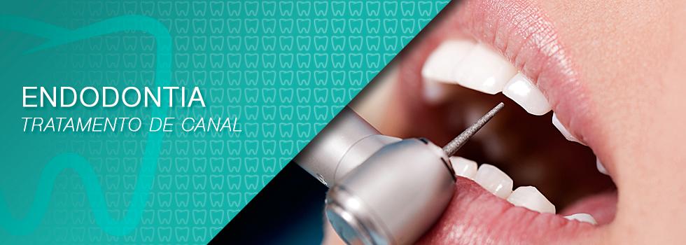 endodontia - DÚVIDAS MAIS FREQUENTES SOBRE O TRATAMENTO ENDODÔNTICO (CANAL) !