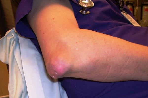 Asam Urat (Artritis Gout)