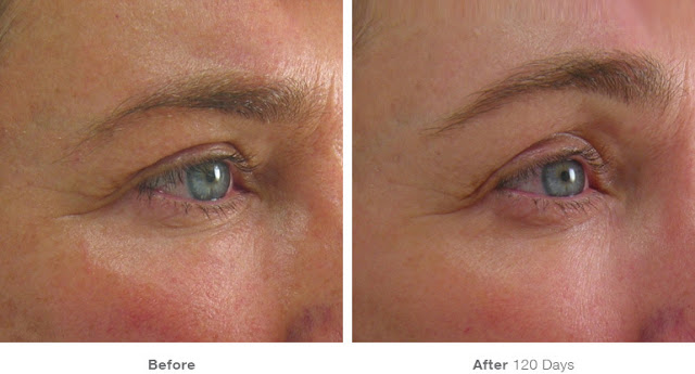 Ultherapy-Before-And-After-Brow-Lift
