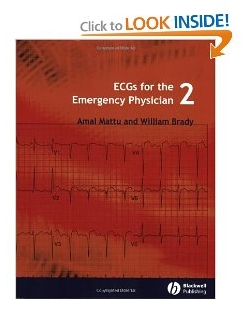 ECGs for the Emergency Physician 2 PDF By Amal Mattu