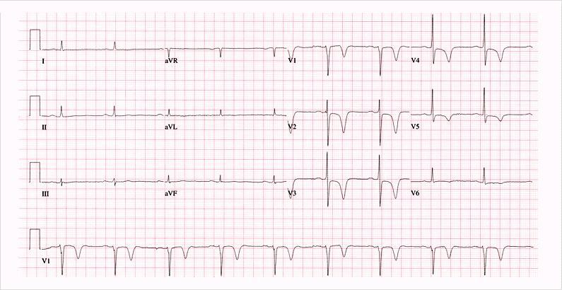 CK, CKMB, LDH, SGOT biasanya normal. Bila meningkat tanda infark miokard.
