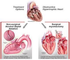 treatment for hypertrophic obstructive cardiomyopathy