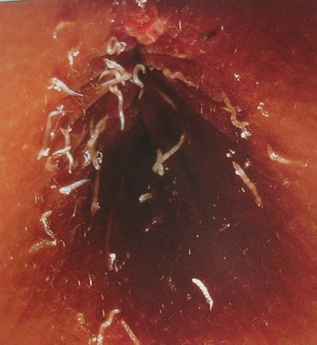 Couperosis da parassiti