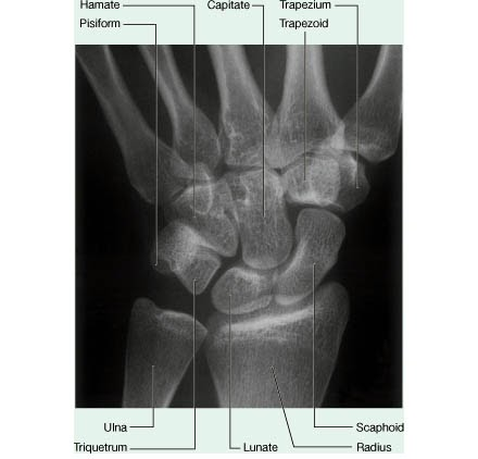 Hand Anatomy: Tips For Learning The Carpal Bones