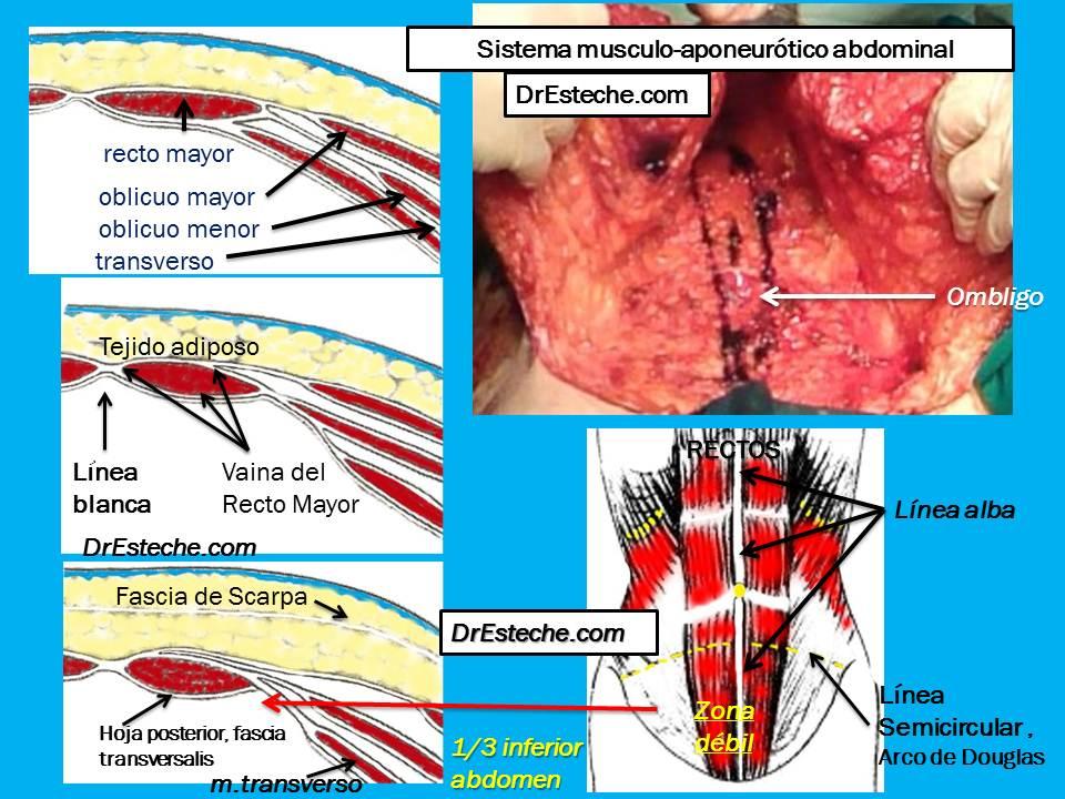 Cirugía Plástica Abdominal. DrEstecheDermolipectomía.blogspot.com ...