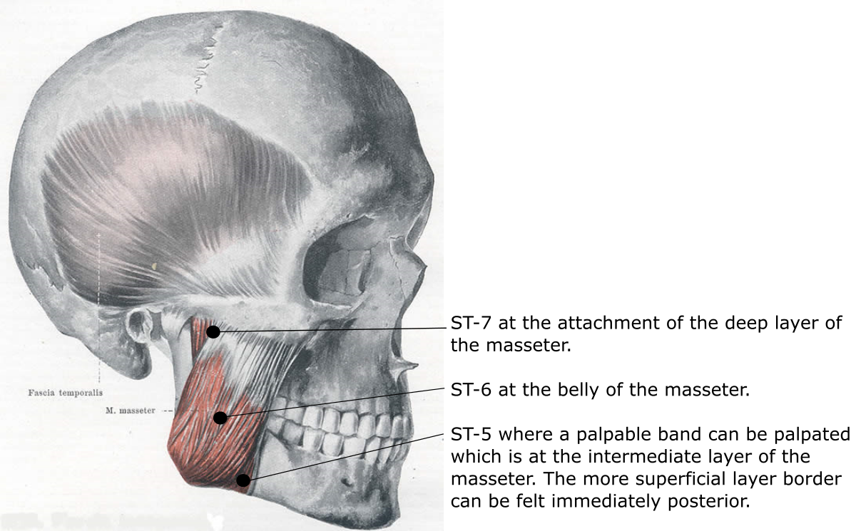 Anatomy of the Sinew Channels: Direct Needling of the Masseter and ...