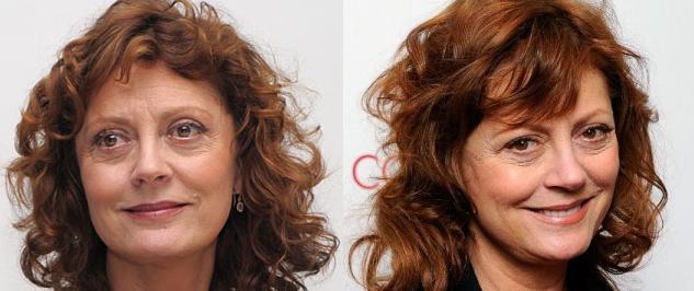 blepharoplasty : Makemeheal.com Celebrity Plastic Surgery ...