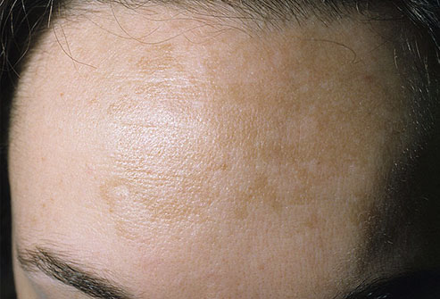 Discolored Skin Patches: 38 Causes, Photos