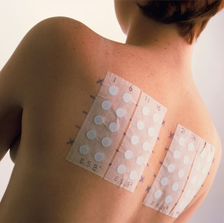 Skin allergy test - Wikipedia