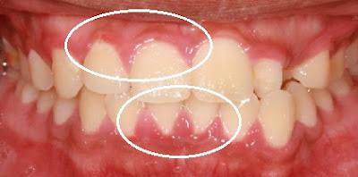 aspecto de encias inflamadas sangrado gingivitis
