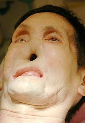 www.kaskus-lover.blogspot.com | James Waki, Pria Mendapatkan Wajah Baru Setelah Kecelakaan Terparah