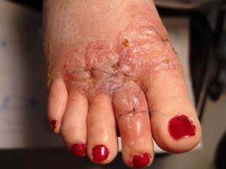 Giải đáp thắc mắc về bệnh viêm da cơ địa dị ứng