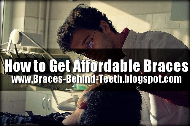 Affordable Braces
