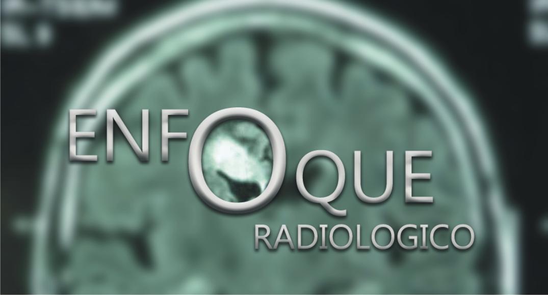 Enfoque Radiologico