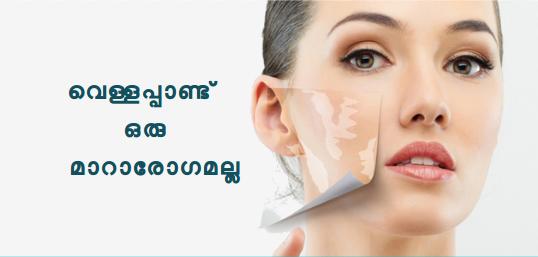 http://www.vitiligopedia.com