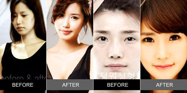 Foto hasil Operasi Plastik Wanita Korea