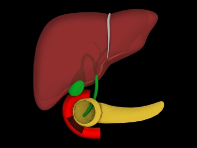 كيف تتجنب تليف الكبد - علاج تليف الكبد بشكل طبيعي