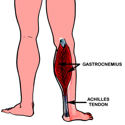 gastrocnemius (muscle)