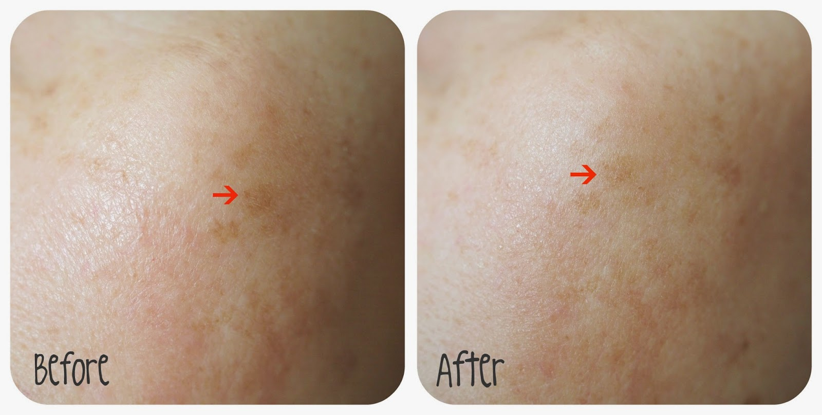 Palmer Skin Therapy Oil before and after
