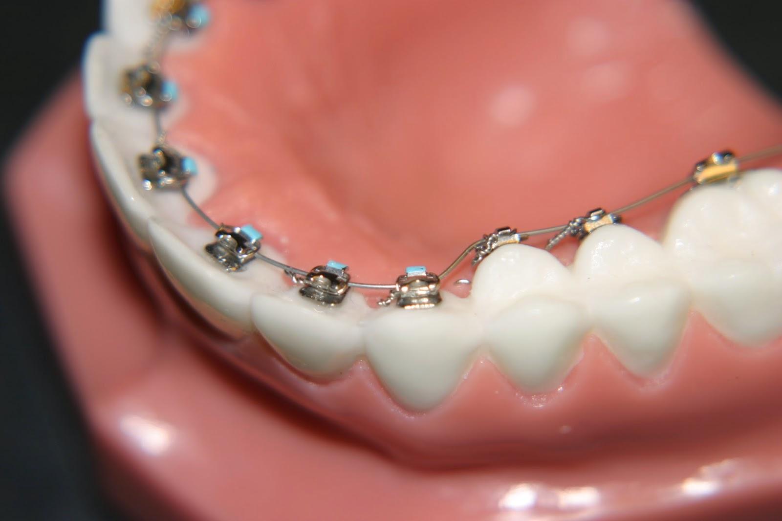 Incognito/ Lingual braces