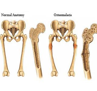 Cauzele, simptomele si tratamentul osteomalaciei